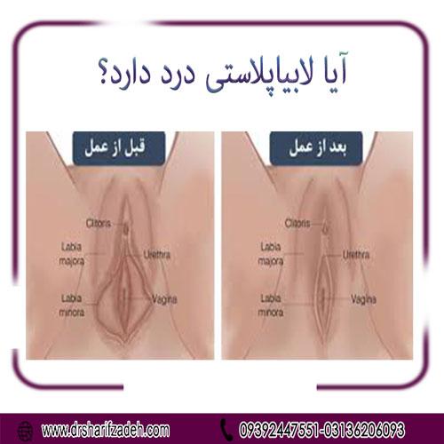 آیا لابیاپلاستی درد دارد؟