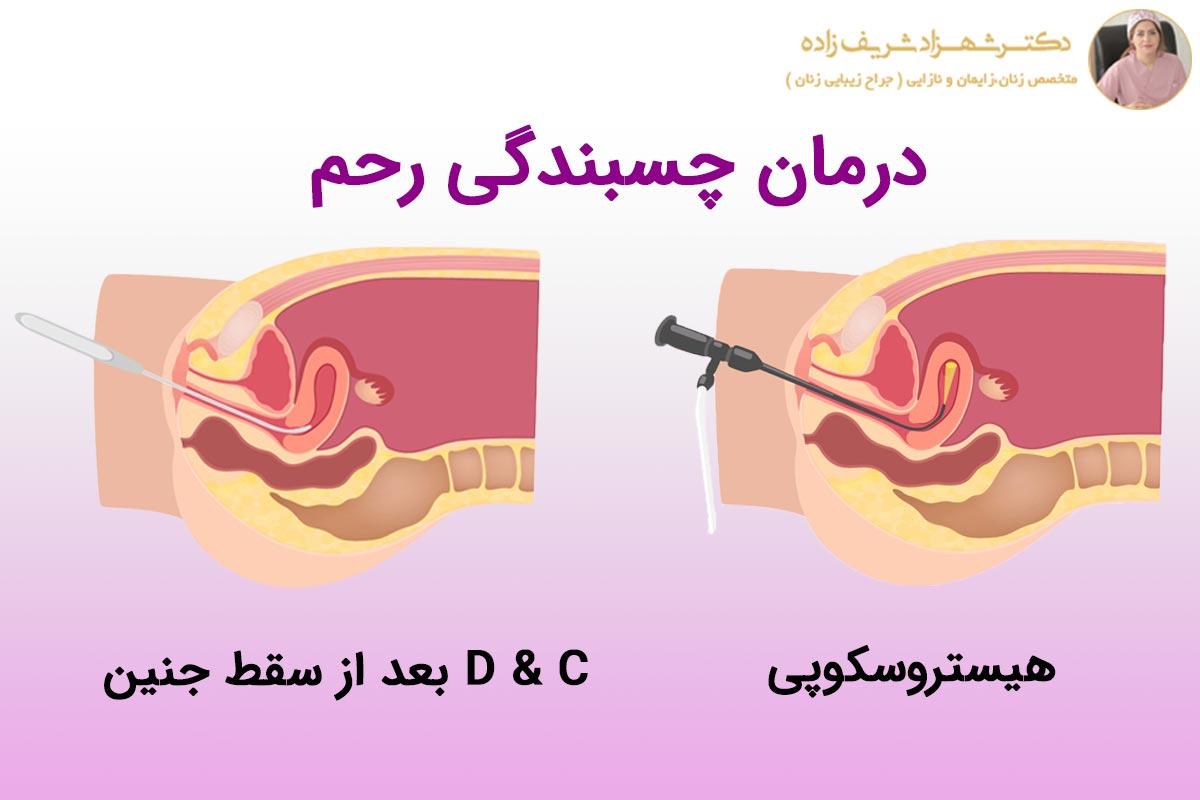 روش های تشخیص و درمان چسبندگی رحم