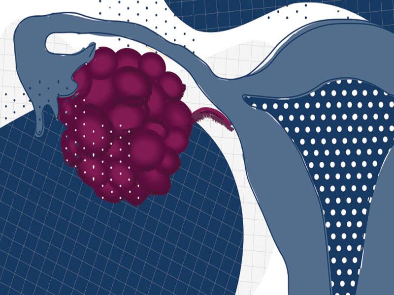 آیا سرطان تخمدان قابل درمان است؟